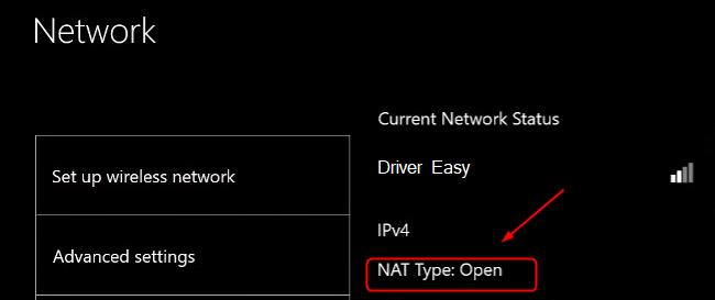 NAT type